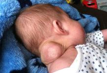bult bij baby in de nek