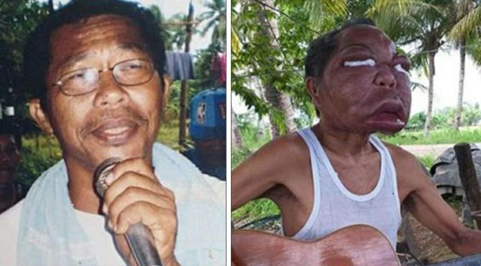 Gezicht vader zwelt op nadat hij ziekte heeft opgelopen waarvan hij dacht dat hij verkouden was