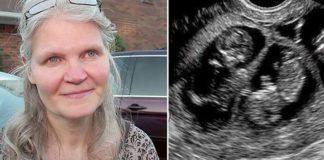 42-jarige zwanger van drieling. Arts kijkt, zegt 2 woorden die iedereen naar adem doen happen