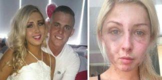 19-jarig meisje 4 uur lang geslagen omdat ze haar vriendje geen sigaret wilde geven
