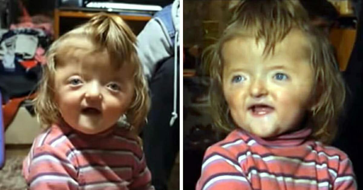 2-jarige verbannen uit kinderdagverblijf omdat haar vervormde schedel 'te eng' eruit ziet