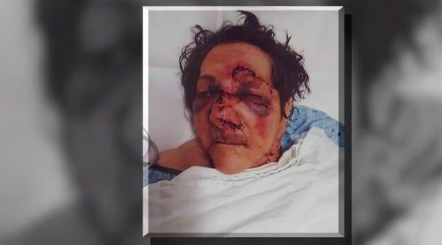 vrouw aangevallen