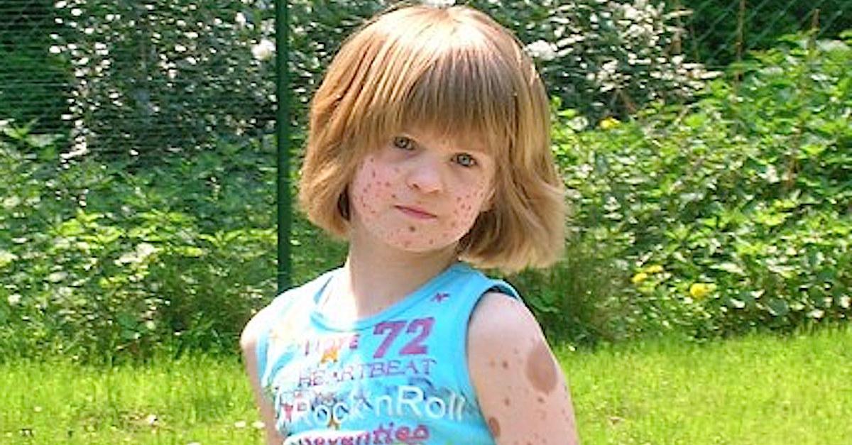 Meisje geboren met 'sproeten' over hele lichaam werd jarenlang gepest maar is nu een model