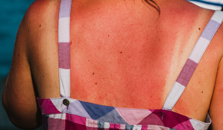 Je leven riskeren om naar de zonnebank te gaan – dit is waarom het zo gevaarlijk is